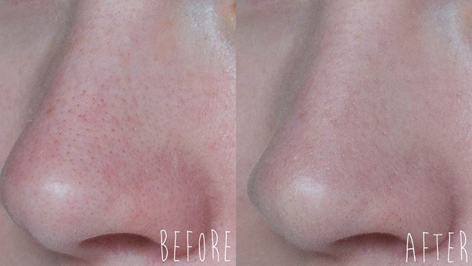 RED REIDING HOOD: Ervaring beauty blogger review Tea Tree Flawless BB Cream The Body Shop before after voor na close up