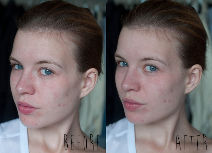 RED REIDING HOOD: Beauty blogger before after Tea Tree cleansing kit The Body Shop ervaring review