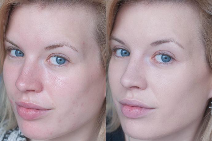 RED REIDING HOOD: Beauty blogger review bobbi brown moisture rich foundation spf 15 swatch fair light dry skin roaccutane