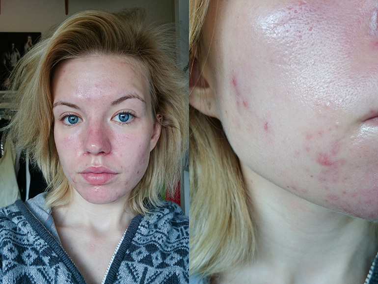 RED REIDING HOOD: Blogger roaccutane acne before after photos